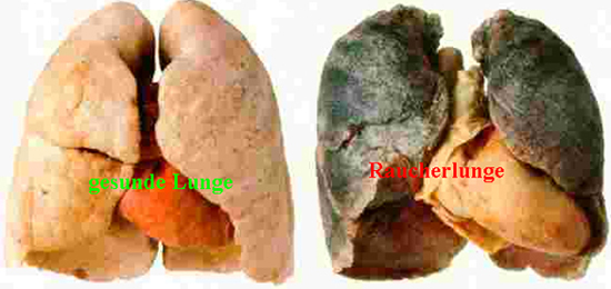 Lungenvergleich
